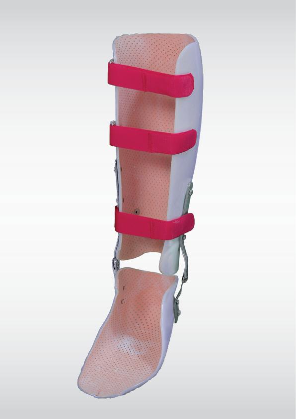Afectiuni ale articulatiilor spinarii si tratamentul acestora