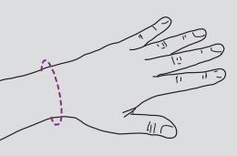 Orteza pentru incheietura mainii mana, fixa TRIACARP 2